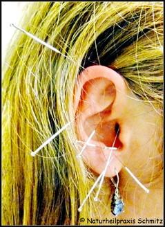 Ohr mit Akupunkturnadeln, Ohrakupunktur